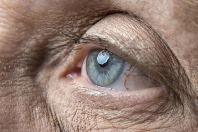 Komplikacje po operacji zaćmy – jak ich uniknąć?
