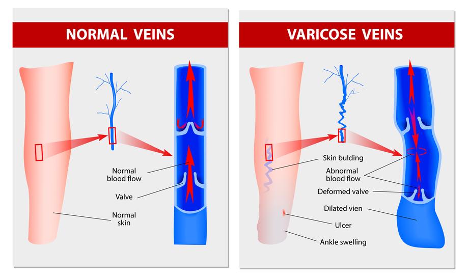 Varicose Vein Diagram