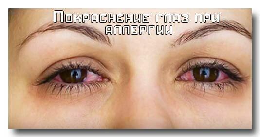 Синяки под глазами при аллергии