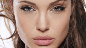 angelina-jolie-prp-treatment-injection