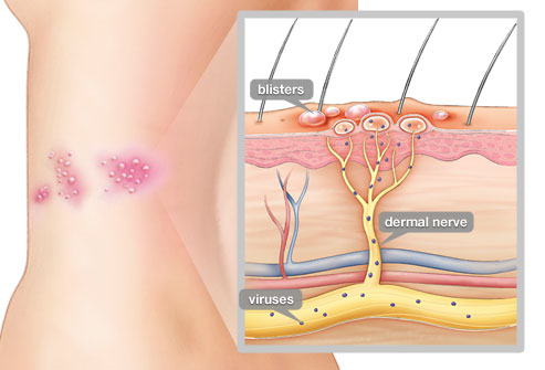 Does Herpes Cause Heart Damage And Nerve Damage 2