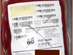 Abgelaufene Blutkonserve