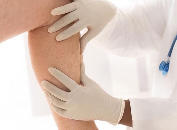 ¿Venas varicosas? Para de sufrir con USA Vein Clinics