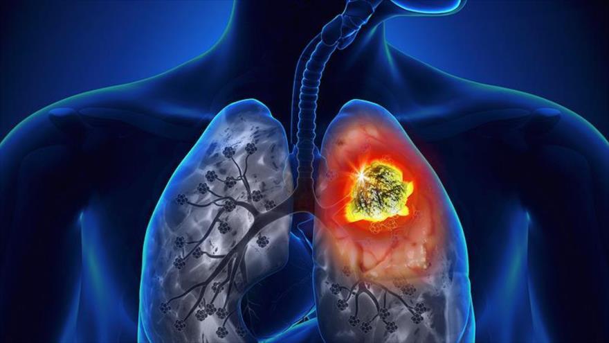 Representación gráfica de un cáncer de pulmón.