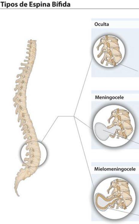 espina-bifida-2