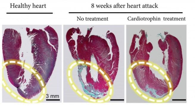 Las zonas azules son areas dañadas y las rojas músculo sano del corazón./ Cell Research