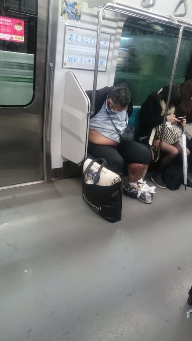 左足壊死ニキ11