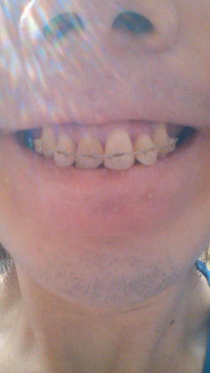 歯列矯正99