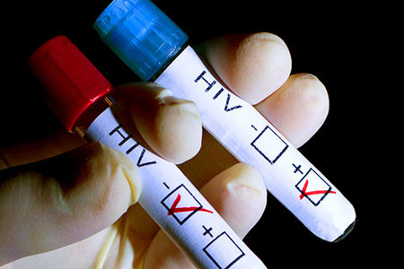 HIV検査