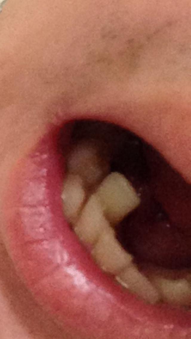 歯並び261