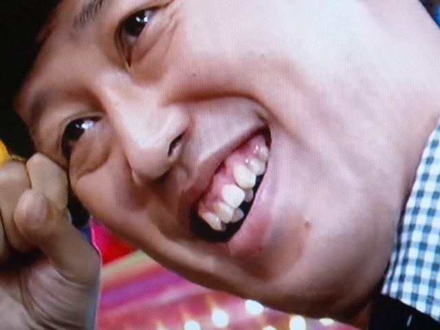 歯並び14