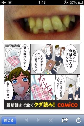歯並び13