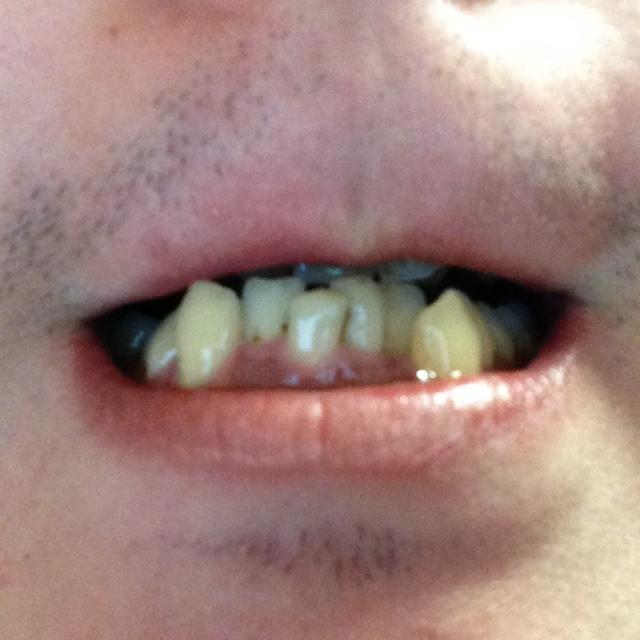 歯並び22