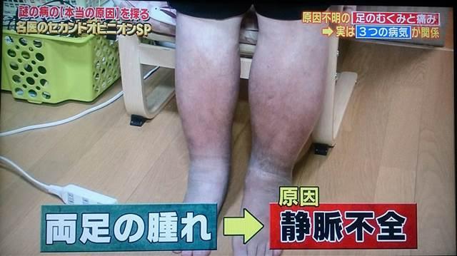 左足壊死ニキ221