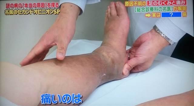 左足壊死ニキ222