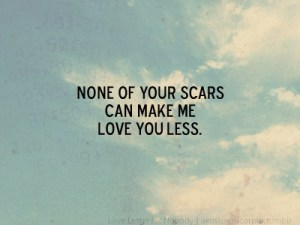 48 none of your scars