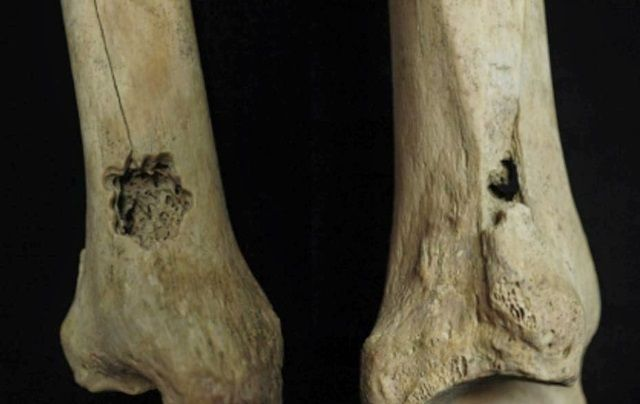 Primera operación de hueso en Perú. Crédito: Revista Internacional de Paleopatología.