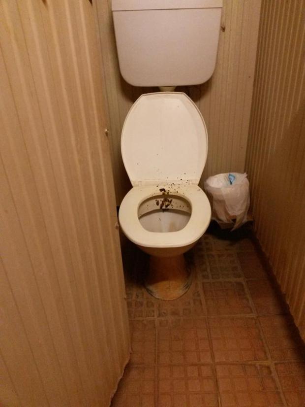 dreckige Toilette