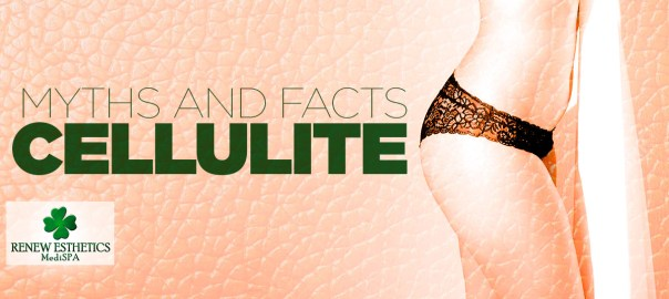 Myths-and-facts-about-cellulite