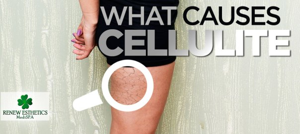 what-causes-cellulite