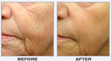 laser-skin-rejuvenation