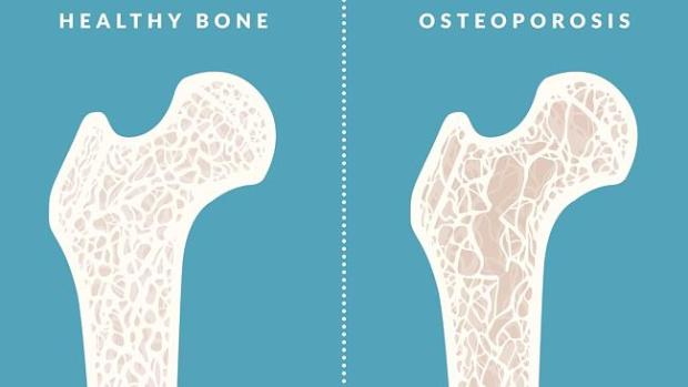 Timothy Dreyer could help counter osteoporosis and return bones to a healthy level.