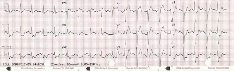 Prehospital ECG of subclavian plaque rupture causing diffuse ST-segment depression