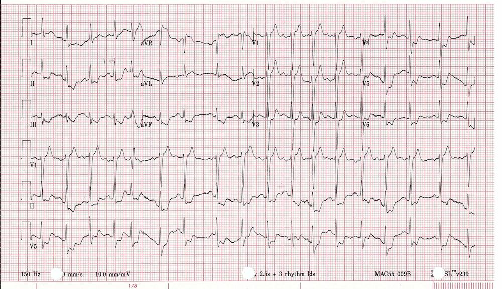 Presenting ECG of subclavian plaque rupture causing diffuse ST-segment depression