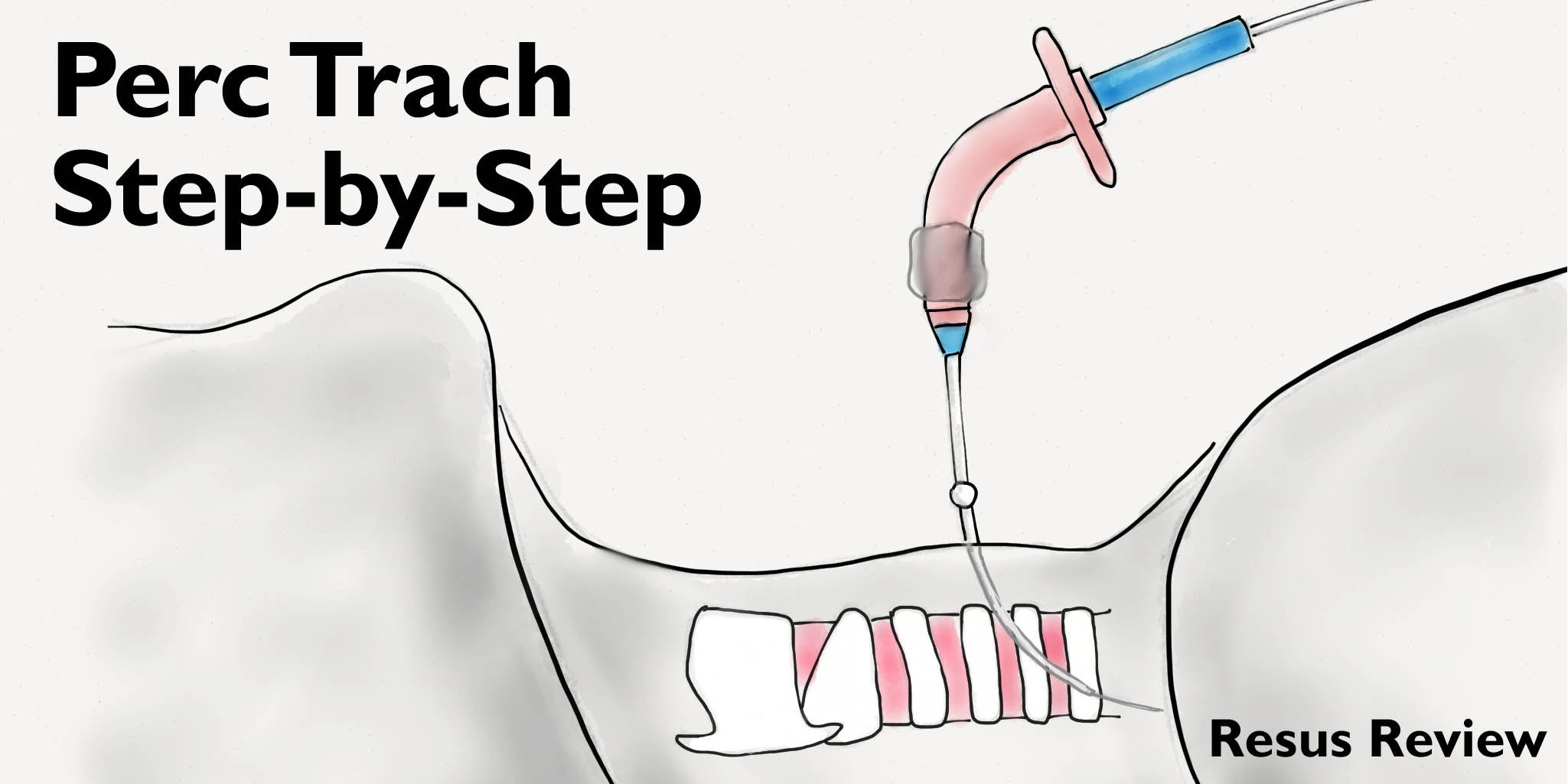 Perc-Trach-Tutorial-Title-Image