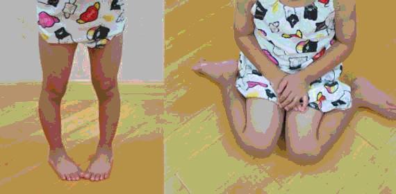 Endogirismo- Anteversión femoral