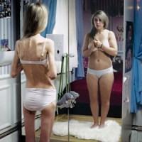 33 procent van de anorexia doden door hartproblemen.