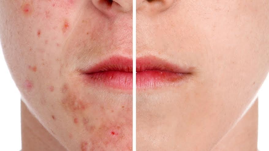 DIY Natural ways to get rid of scars