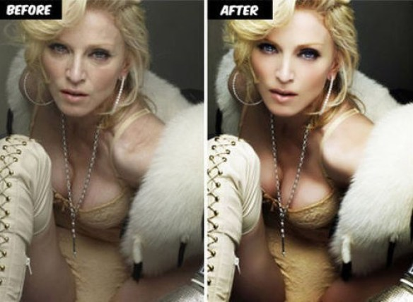 Madonna Before & After (foto whale.to)
