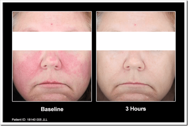 Mirvaso Before and After Pictures : Rosacea Support Group