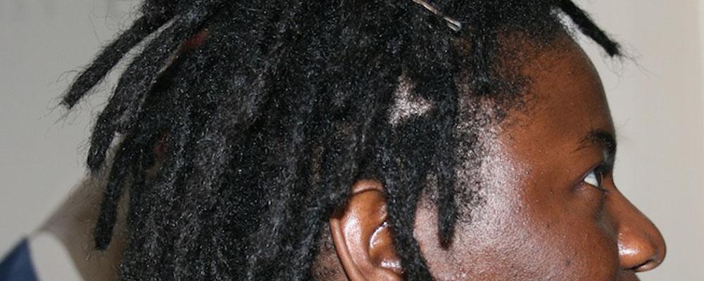dreadsides (11)