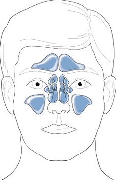 What causes sinus he