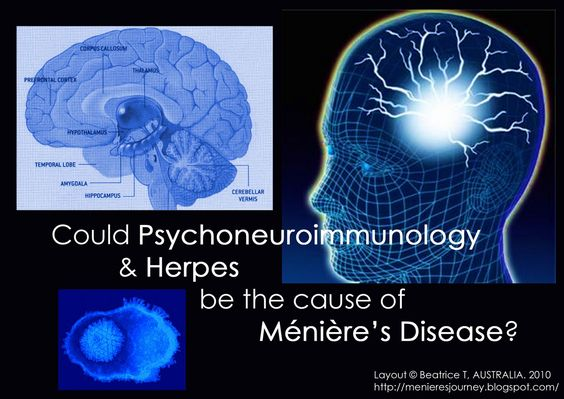 Meniere's disease is a condition with vertigo, tinnitus (ringing, buzzing, and noises in the ears) and progressive deafness 1