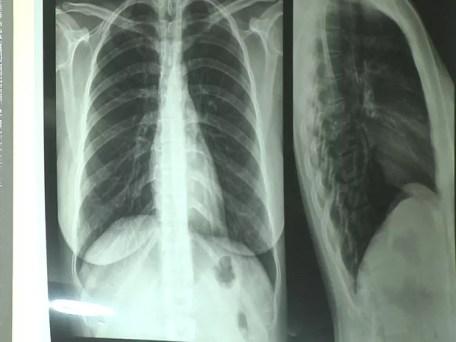 Doença pode ser diagnóstica pelo raio-x (Foto: Reprodução/TV Tapajós)