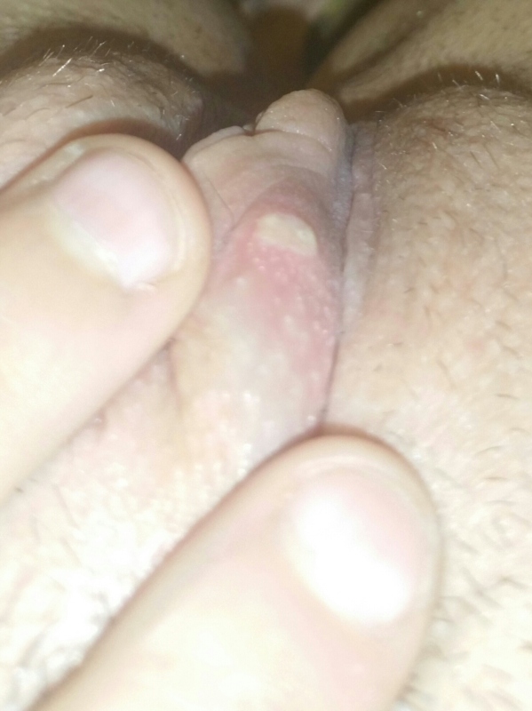 Does Herpes Appear On Your Clit? 1
