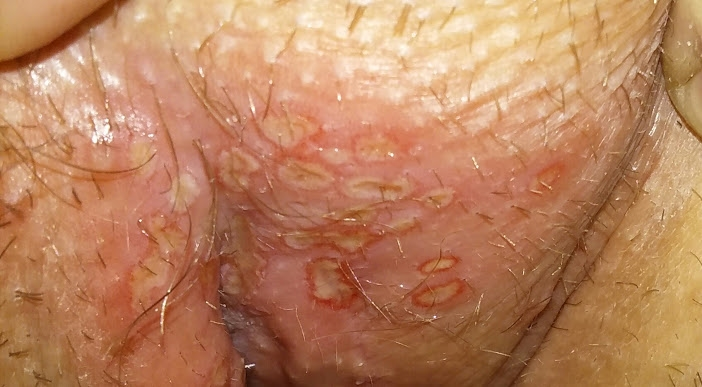 HELP PLEASE!HERPES? Could I Have It? 3