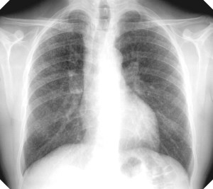 Silicosis of the lung
