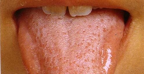舌を見れば健康状態がわかる?!