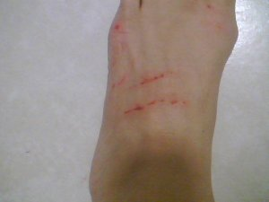 Cat Scratch Foot