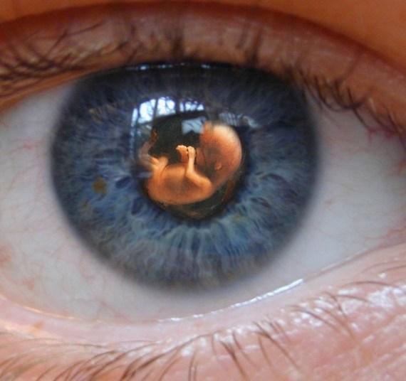 Fetus shown in the eye
