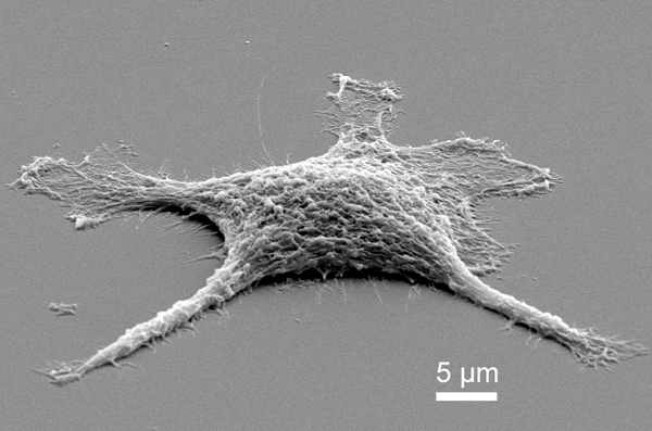 """The first stage of the """"zombie cell"""" only moderately heated, the cell is now pure silica and needed a gold coating for a scanning electron microscope to image it. (Credit: Sandia National Laboratories)"""