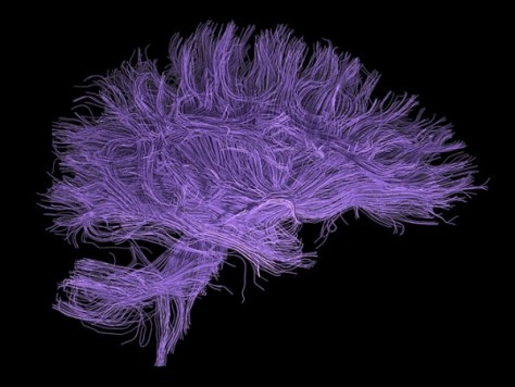 Fungal infection is probably the cause of Alzheimer's disease (Credit: Ars Electronica/Flickr)