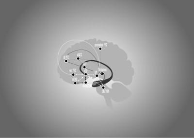 Brain Decision Diagram