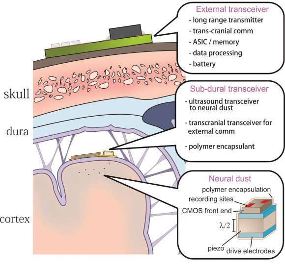 Neural Dust: an ultrasonic solution for chronic brain-machine interfaces