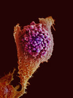 An image of a cancer cell