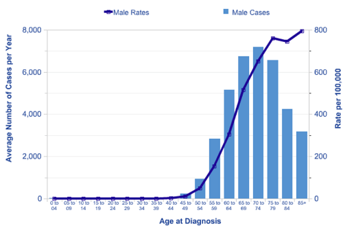 Age-related incidence of prostate cancer